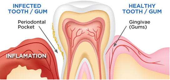 bostondentalwallness-gumdisease-tooth