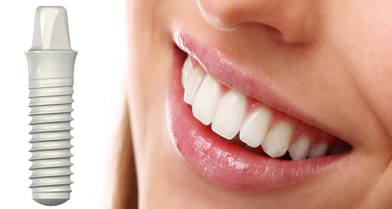 zirconia-dental-implants-bostondentalwellness