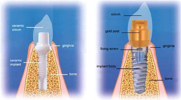 zirconia-implants-from-bostondentalwellness