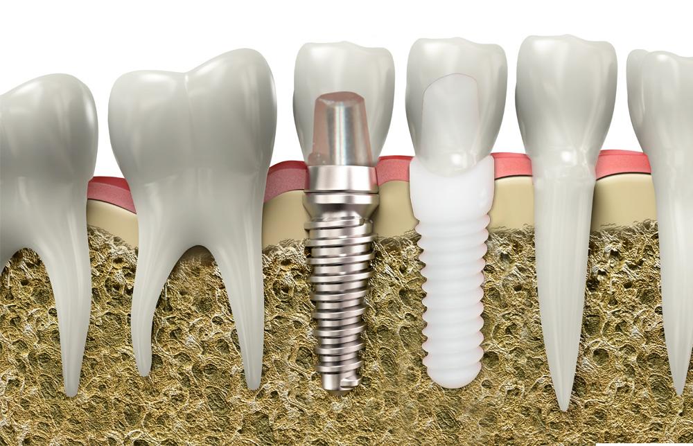 Best Dental Implants In Brookline Ma Titanium And